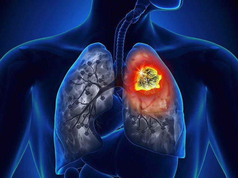 U phổi gây ho tức ngực khó thở